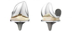 DePuy Attune Knee Replacement Lawsuit